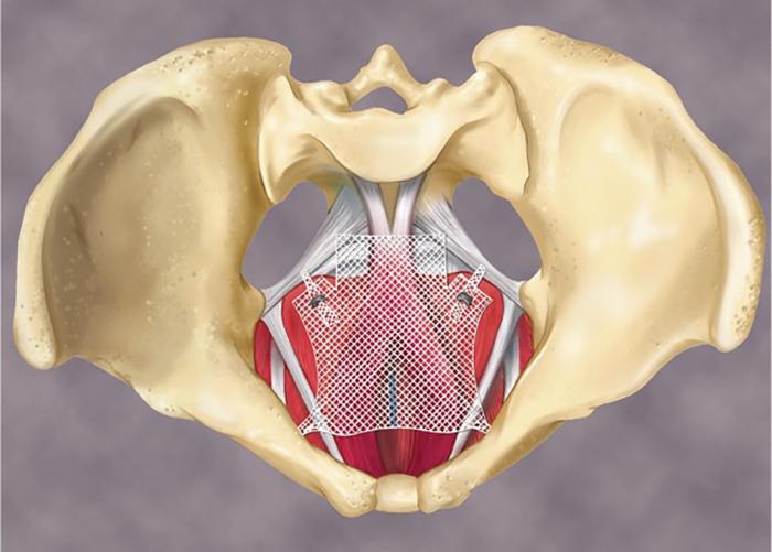 Quel est le prolapsus anal